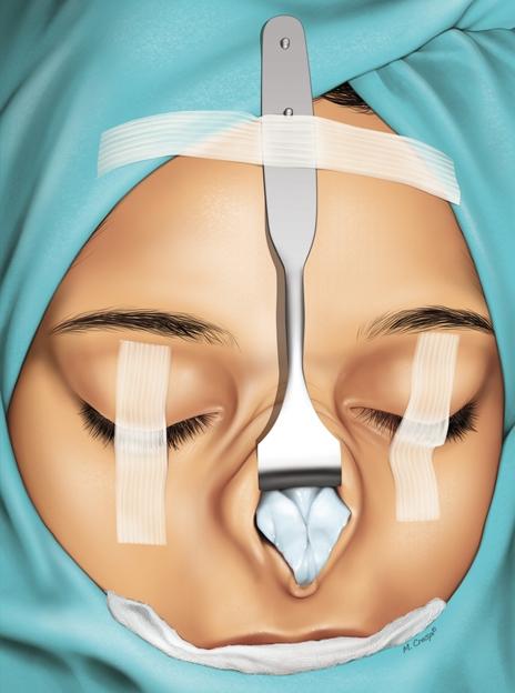 nasal skin retractor