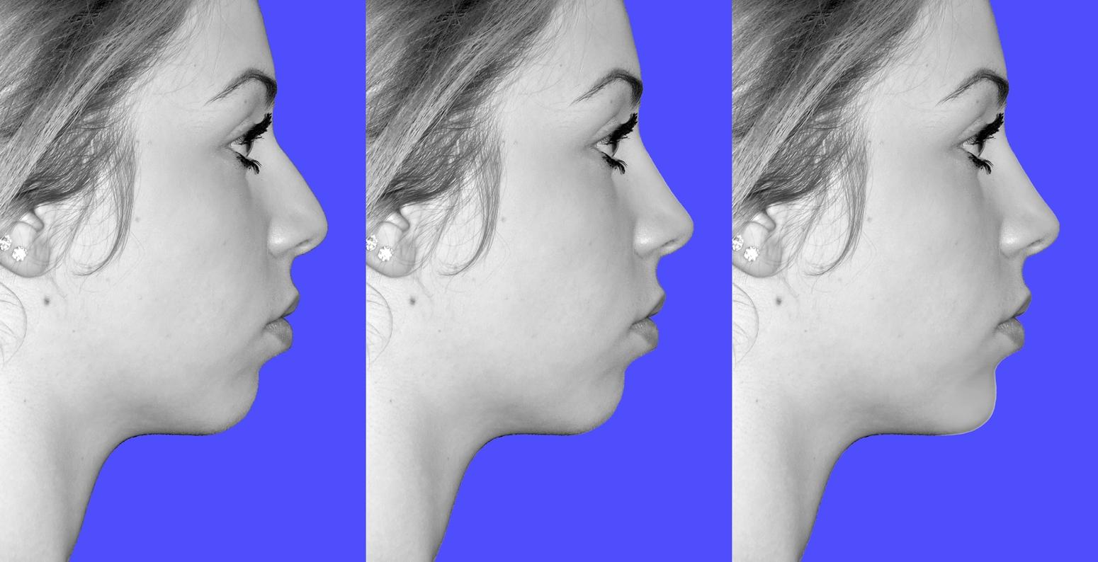 studio pre chirurgico del viso