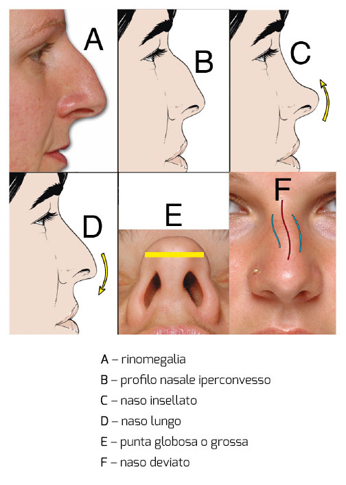 rinoplastica2-meneghini-bologna