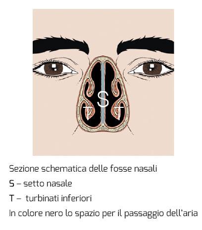 setto-nasale-meneghini