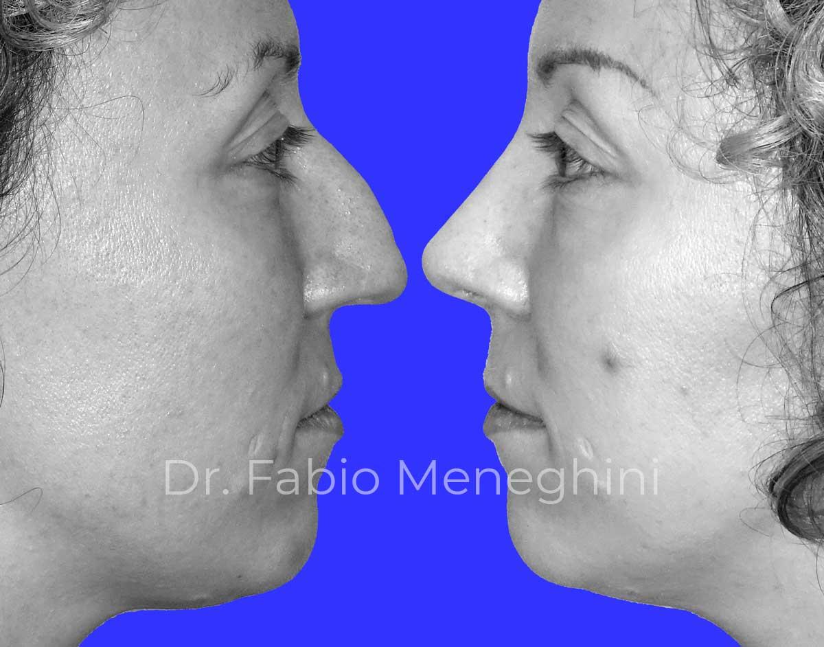 PROFILOPLASTICA (rinoplastica, mentoplastica e avanzamento mandibolare)