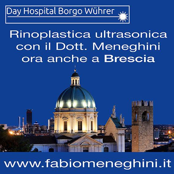 rinoplastica-ultrasonica-brescia-dr.meneghini