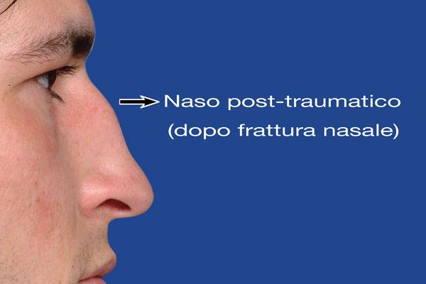 6–Naso-post-traumatico
